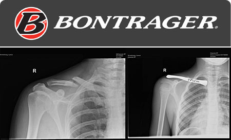 bontrager_inform_carbonclavicle1